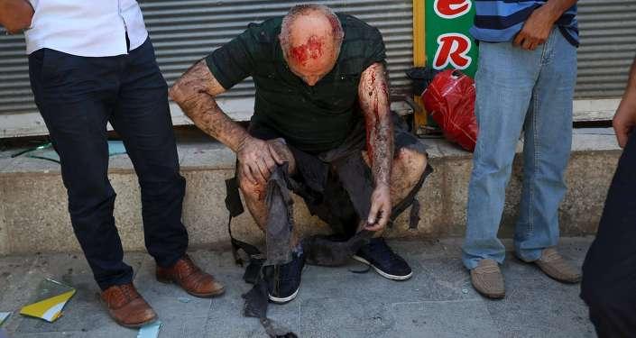 Пострадавший во время теракта в турецком Суруче