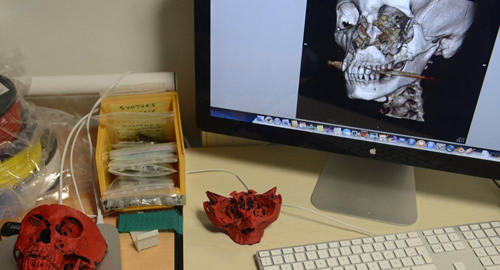 3D-принтер, используемый для воспроизведения черепа пациента