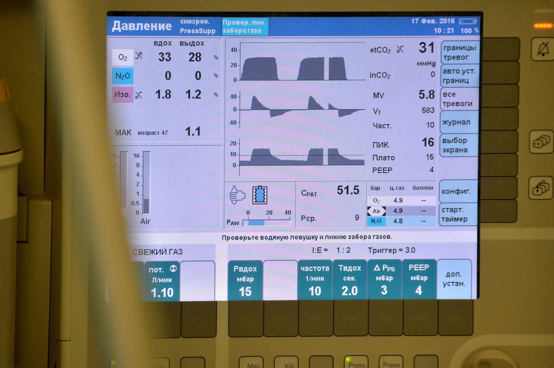Монитор анестезиолога
