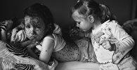 Вспышка ветрянки в московском детском саду